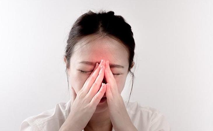 Viêm mũi xoang bội nhiễm là dạng bệnh có mức độ nặng nhất