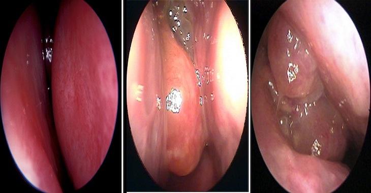 Viêm mũi xuất tiết là gì - Hình ảnh viêm mũi xuất tiết