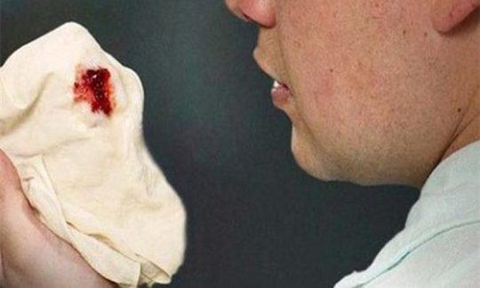 Viêm xoang khạc ra máu có sao không? Cách điều trị thế nào?