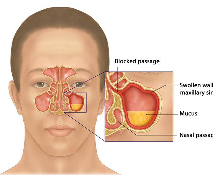 Viêm xoang mãn tính là tình trạng xoang mũi bị viêm từ 12 tuần trở lên