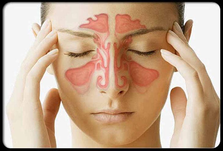 Viêm xoang nặng - bệnh lý hô hấp mãn tính