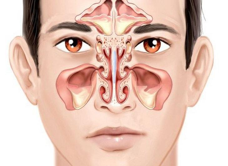 Viêm xoang nhức đầu hình thành do dịch nhầy bị ứ đọng lại khoang xoang dẫn tới viêm nhiễm