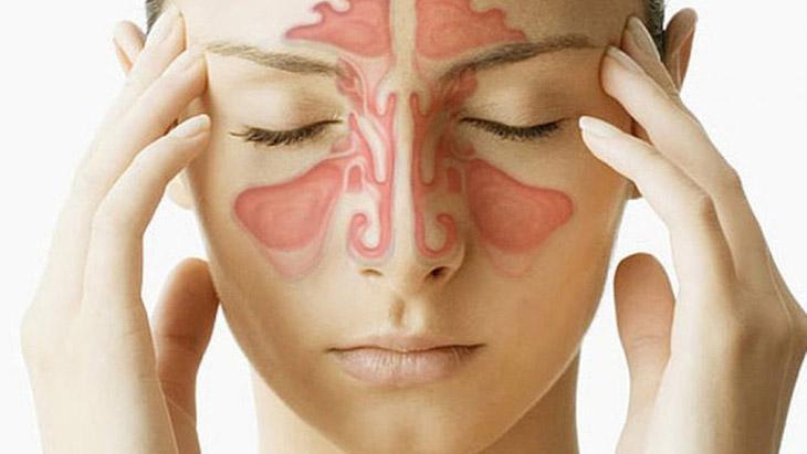 Viêm xoang phù nề - bệnh lý hô hấp khó chịu