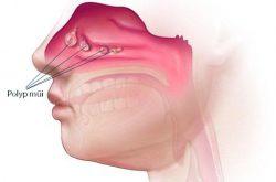 Viêm xoang Polyp mũi là bệnh lý khá phổ biến hiện nay