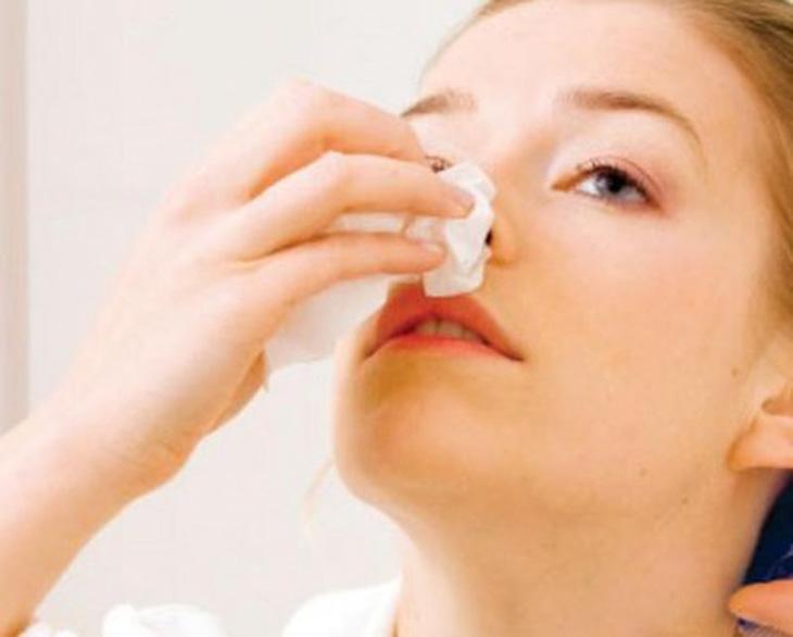 Polyp mũi xoang có thể gây hiện tượng xuất huyết niêm mạc mũi