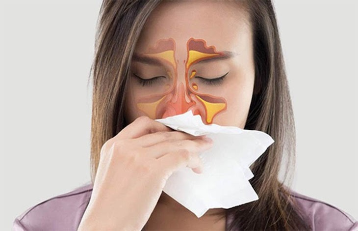 Đau nhức đầu, hắt hơi, suy giảm thị lực là biểu hiện của viêm xoang trán