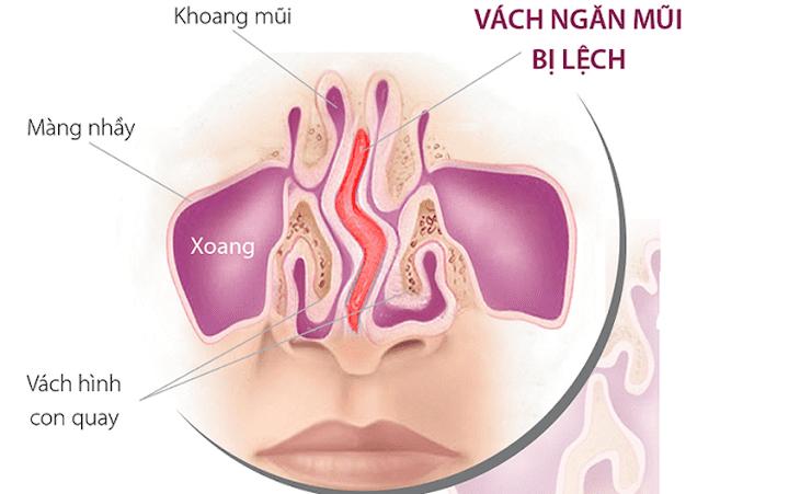 Lệch vách ngăn mũi cũng là yếu tố hình thành bệnh