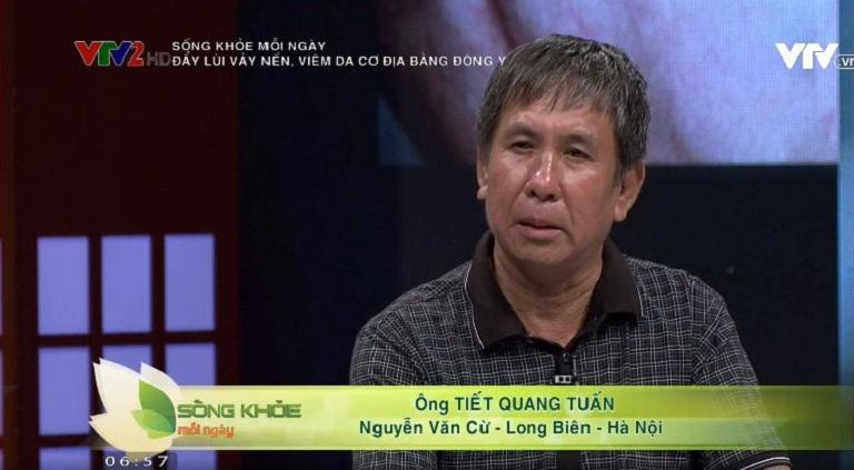 Ông Tiết Quang Tuấn điều trị thành công vảy nến nhờ bài thuốc Thanh bì Dưỡng can thang