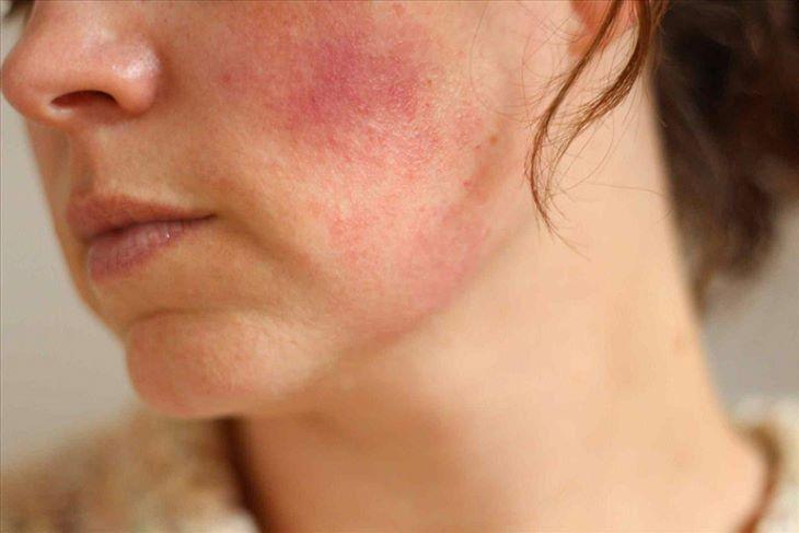 Acnes Scar Care có thể gây ửng đỏ tại vị trí bôi thuốc đối với những làn da nhạy cảm