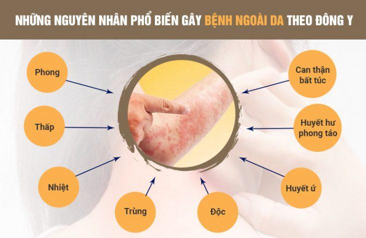 Theo Đông y, có rất nhiều nguyên nhân gây ra bệnh ngoài da