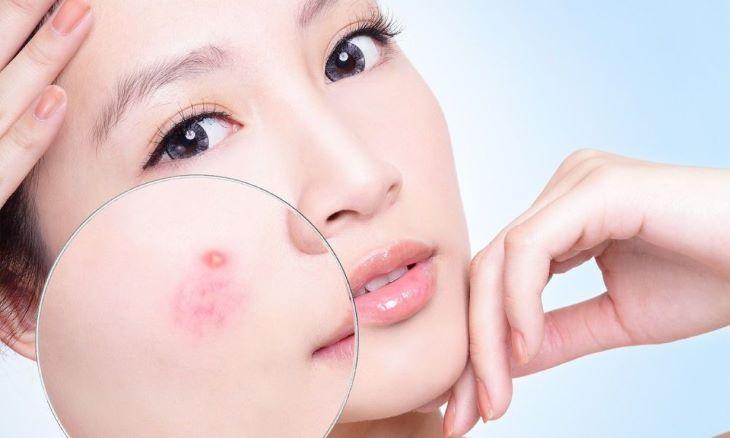 Sản phẩm được đánh giá có hiệu quả cao trong việc điều trị mụn thâm