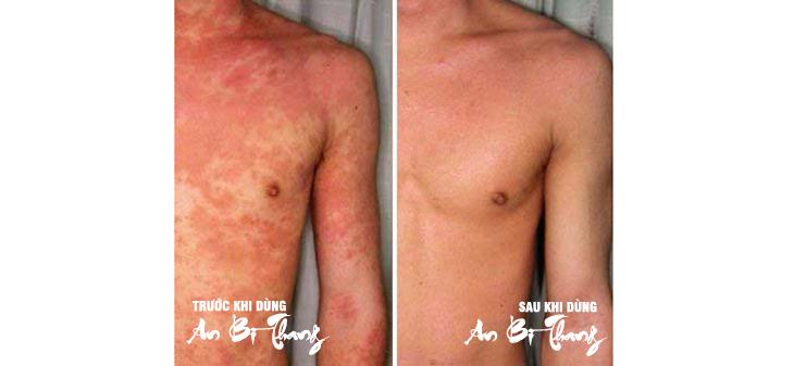 Làn da của Mạnh Hùng đã trở lại trạng thái bình thường sau 3 tháng điều trị viêm da cơ địa