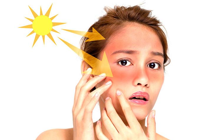 Ánh nắng mặt trời là một trong những nguyên nhân hàng đầu gây tàn nhang