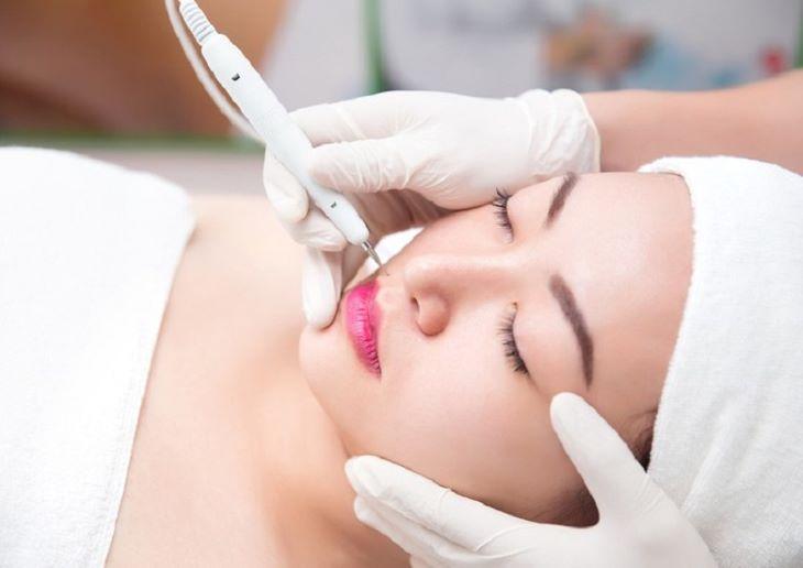 Bắn tàn nhang giúp người bệnh nhanh chóng lấy lại làn da như mong muốn