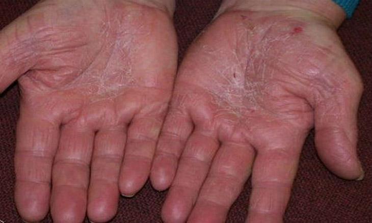 Đôi tay á sừng đau nhức, bong tróc da, cản trở công việc và cuộc sống của người bệnh