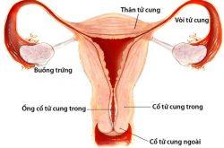 Viêm phần phụ là tình trạng viêm nhiễm tại các bộ phận phần phụ của phụ nữ