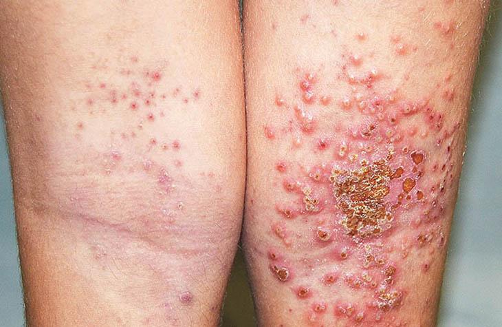 Viêm da tái lại nhiều lần, không xử lý đúng cách có thể gây biến chứng, bội nhiễm nguy hiểm