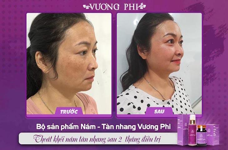 Khách hàng Tạ Thị Vân, 47 tuổi khỏi nám chỉ sau 1 liệu trình