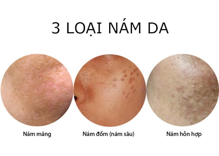 Nám da mặt được chia ra làm 3 dạng phổ biến