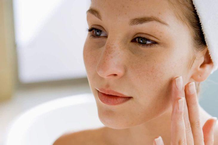 Chăm sóc da sau khi trị nám bằng laser như thế nào cho tốt