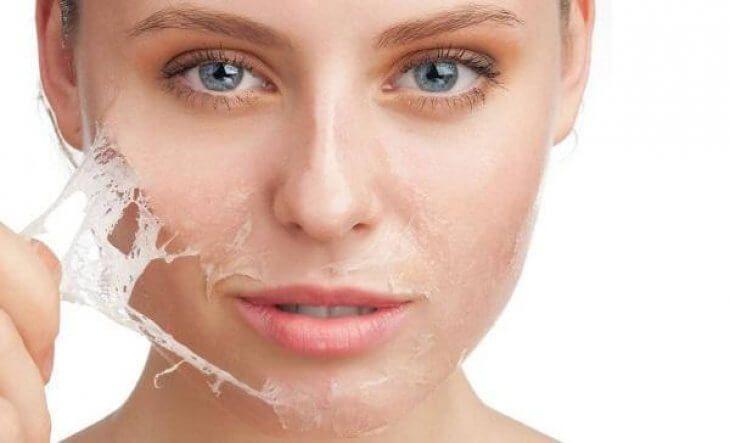 Chăm sóc da sau khi trị nám bằng laser phải thực hiện theo hướng dẫn của bác sĩ