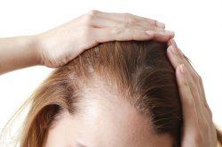 Viêm da dầu ở đầu khiến người bệnh ngứa ngáy, khó chịu