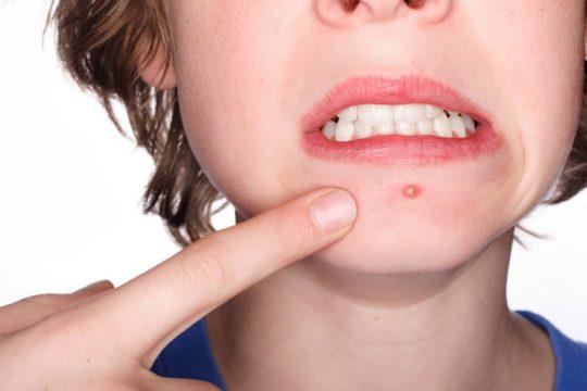 Mụn tuổi dậy thì kéo dài bao lâu khiến nhiều bạn trẻ hốt hoảng?