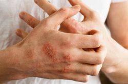 Chế độ ăn uống ảnh hưởng không nhở tới bệnh viêm da cơ địa