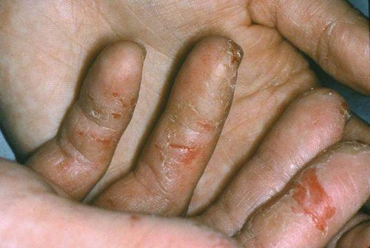 Triệu chứng chàm khô khiến người bệnh gặp khó khăn trong cuộc sống