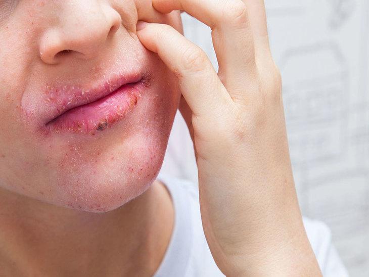 Da mặt bị khô sần và ngứa là những triệu chứng của bệnh viêm da cơ địa