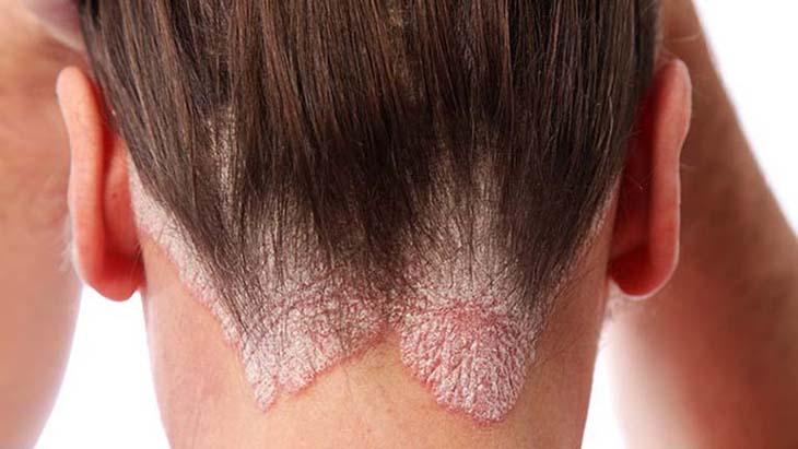 Dùng dầu gội trị vảy nến da đầu cải thiện tốt các triệu chứng ngứa, bong tróc da