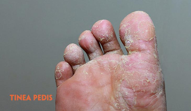 Hình ảnh bệnh hắc lào ở bàn chân
