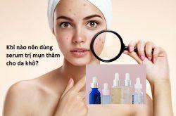 Khi nào nên dùng serum trị mụn thâm cho da khô?