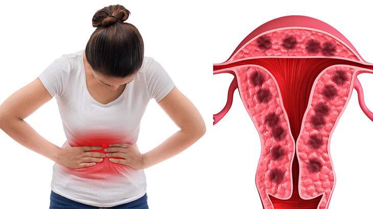 Lạc nội mạc trong cơ tử cung gây không ít biến chứng cho sức khỏe nữ giới