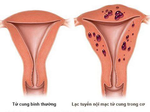 Lạc nội mạc trong cơ tử cung: Nguyên nhân, triệu chứng và cách điều trị