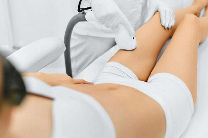 Phương pháp siêu mài mòn giúp trị rạn da sau sinh hiệu quả