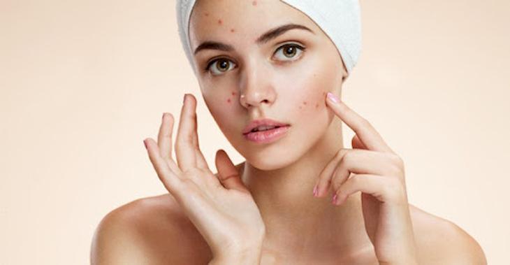 Mụn bọc có thể gây đau đớn, để lại sẹo nếu không tìm thấy phương pháp điều trị phù hợp
