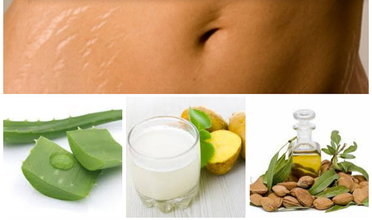 Các mẹo trị rạn da tại nhà dễ áp dụng