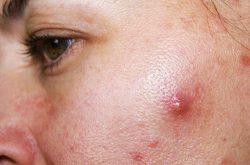 Cần hiểu rõ đặc tính làn da để lựa chọn kem trị mụn bọc hiệu quả