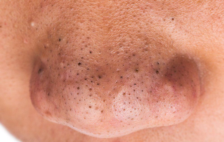 Mụn đầu đen khiến da trở nên sạm màu, kém sắc