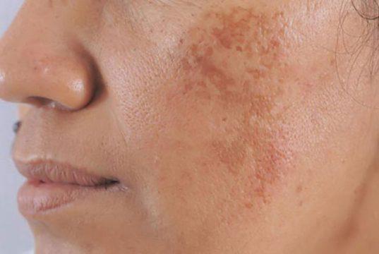 Nám da mặt vùng má là tình trạng rất phổ biến ở chị em phụ nữ