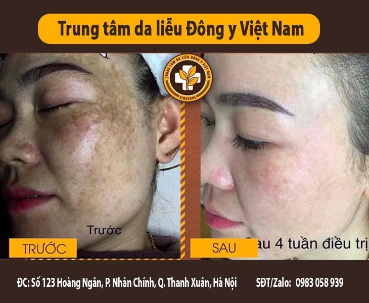 Bệnh nhân trước và sau 1 tháng sử dụng bộ sản phẩm trị Nám da Tàn nhang Vương Phi