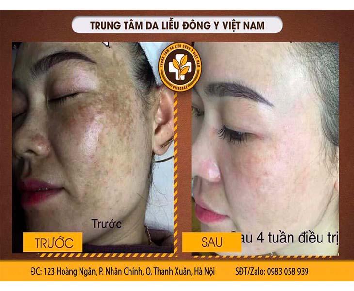 Bệnh nhân sau 4 tuần sử dụng bộ sản phẩm Nám da Tàn nhang Vương Phi