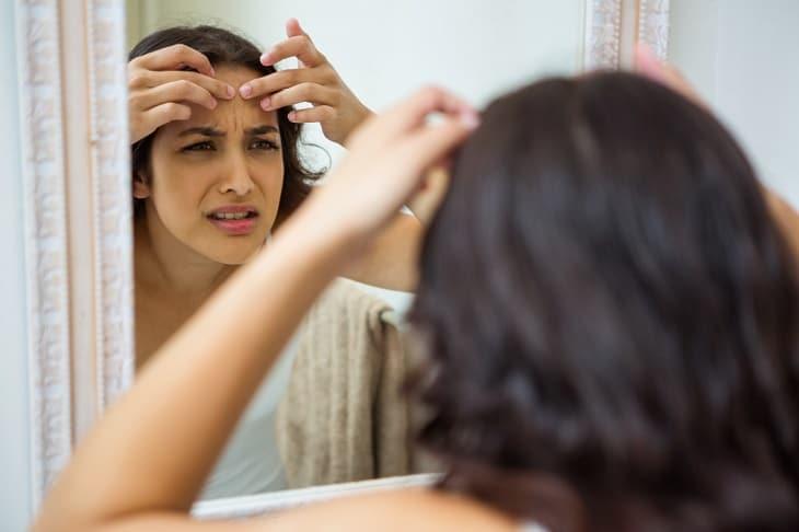 Nặn mụn ẩn tại nhà rất dễ gây biến chứng viêm nhiễm