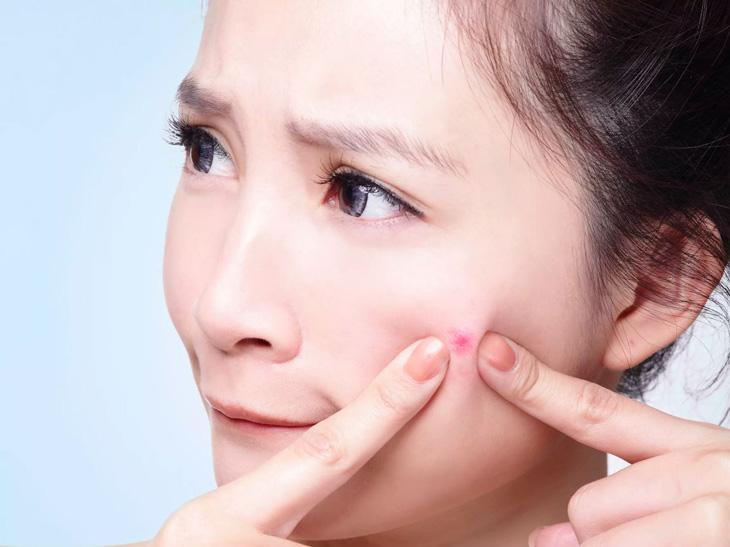 Thói quen sờ tay lên mặt hay nặn mụn cũng chính là nguyên nhân khiến mụn phát triển nặng