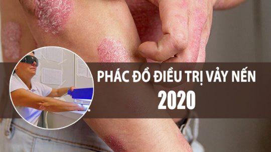 Phác đồ điều trị vảy nến 2020