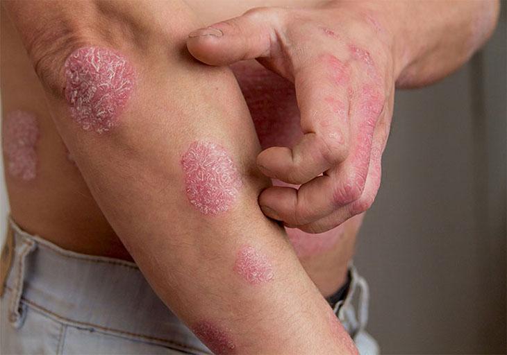 Vùng da bị vảy nến khô rát, ửng đỏ và gây ngứa