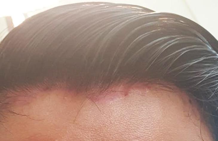 Tình trạng da đầu của Lê Nam trước khi điều trị
