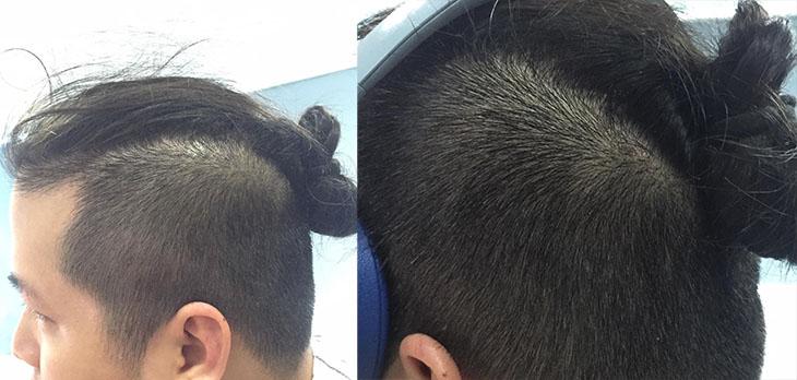 Da đầu của Lê Nam đã trở lại trạng thái bình thường sau 1 liệu trình dùng An Bì Thang đặc trị viêm da dầu