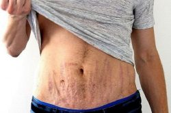 Có nhiều nguyên nhân gây ra tình trạng rạn da ở nam giới